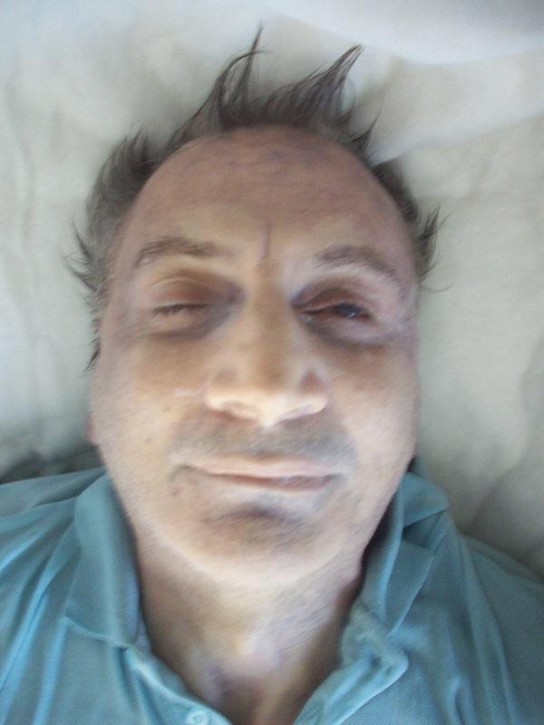 Pigmentazione di pelle a cancro