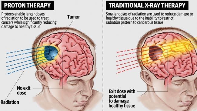 Risultati immagini per protonterapia